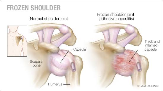 a-medical-illustration-of-a-normal-shoulder-joint-and-one-with-frozen-shoulder-adhesive-capsulitis-16X9.jpg