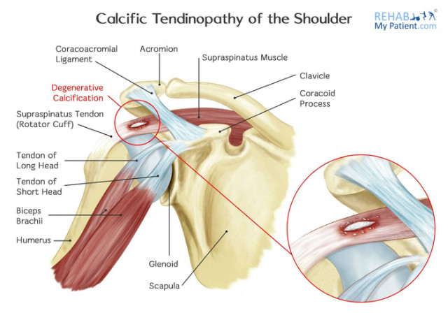 Calcific_tendinopathy_of_the_shoulder.jpg
