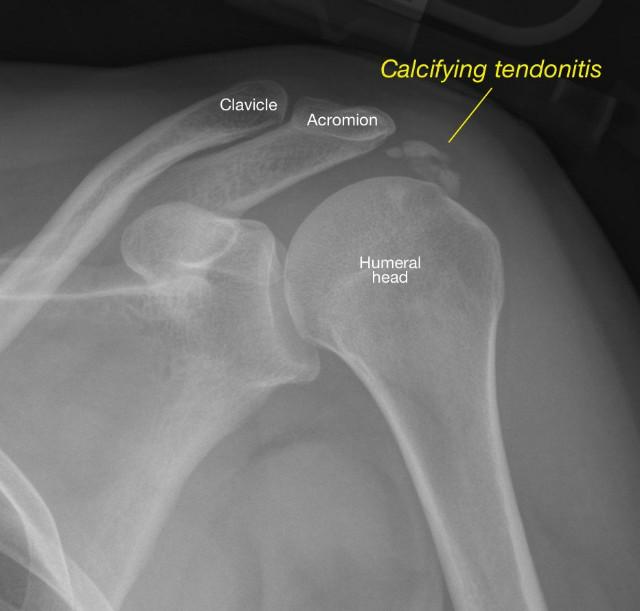 radiograph-shows-an-area-of-calcifying-tendonitis.jpg